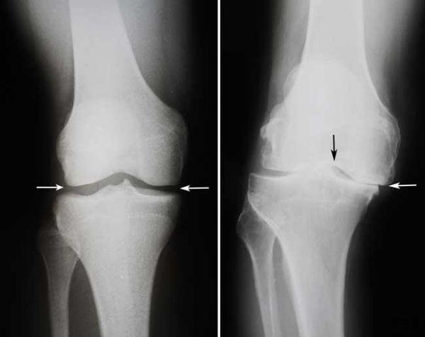 Osteotomia tibial x Artroplastia Unicompartimental do joelho